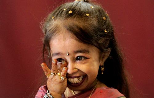 Девушка с ахондроплазией 28 лет фото