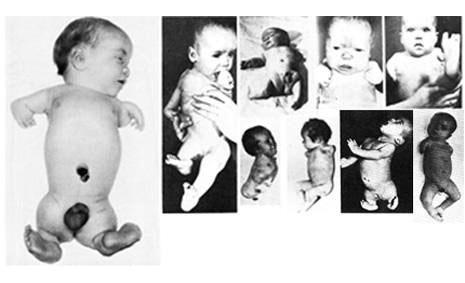 Жертвы талидомидовой катострофы 3
