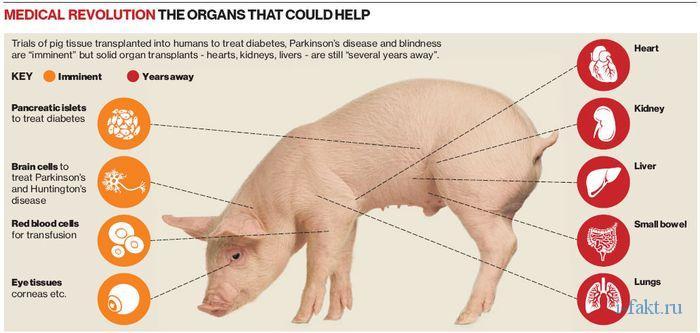 Пересадка органов свиньи человеку