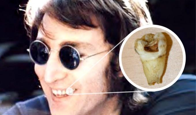 Зуб Леннона